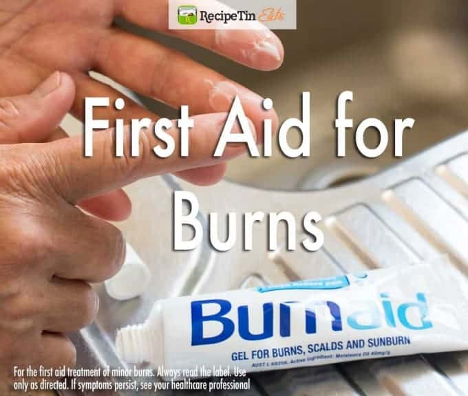First-Aid-for-Burns_v2